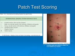 Nickel Poisoning Blindness Contact Dermatitis Part One Ppt Download