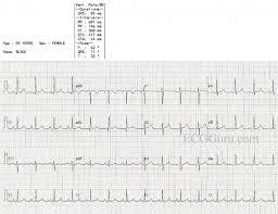 strain pattern ecg meaning p pulmonale ecg guru instructor resources
