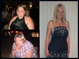 before and after gastric sleeve 84 pounds 252 168 7 months post