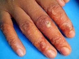 Obat Gatal obat gatal bernanah pada tangan pengobatan penyakit kulit alami