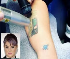 celebrity tattoo removal new haven county picosure laser tattoo