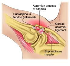 Tendons In The Shoulder Diagram The Difference Between External And Internal Impingement Of The