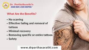 laser treatment for tattoo removal in bangalore treatment for skin u2026