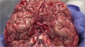 Gross Brain Anatomy Neurologic Examination Videos And Descriptions Brain Dissections