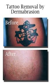 tattoo removal by dermabrasion dermatology center of lawrence