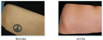 tattoo removal process portland laser tattoo removal process