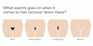 brazilian laser hair removal pictures everything you need to know about getting down there treated