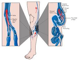 Diagram Of Knee Anatomy Varicose Veins Maffei Vein Center