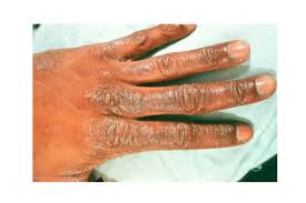 Rug Burn Infection Symptoms What U0027s That Rash How To Id Common Rash Symptoms Reader U0027s Digest