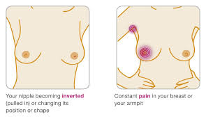 Is It Normal To Have A Light Period The 7 Surprising Signs That Mean You Could Have Breast Cancer