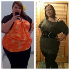 6 months post op rny gastric bypass the new me pinterest