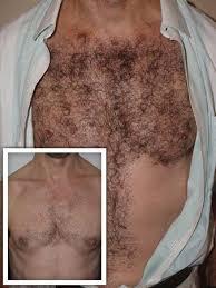 how dense should male pubic hair be body hair transplant miami fl