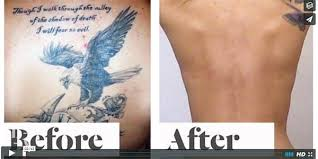 all about laser tattoo removal laseraway