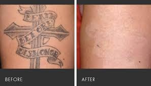 laser tattoo removal miami fl picosure laser tattoo removal