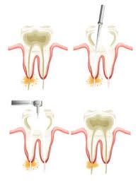 Comfort Dental Hampden Root Canal Treatment In Aurora Endodontist Aurora Hampden