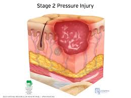 How Do You Get Bed Sores Pressure Injury Staging Illustrations The National Pressure