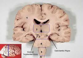 Image Of Brain Anatomy Brain Anatomy The Hippocampus Hypothalamus Thalamus Amygdala