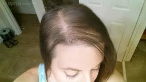 women hair cut to cover bald spot on top of head inspirational haircuts 79924 kids hair cuts