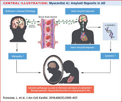 aβ amyloid pathology affects the hearts of patients with