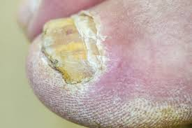 5 embarrassing foot conditions u2013 and what you can do about them