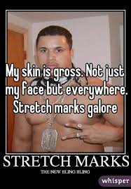 Stretch Marks Meme - skin is gross not just my face but everywhere stretch marks galore