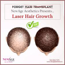low level light therapy hair low level laser therapy to control hair loss promote new strong