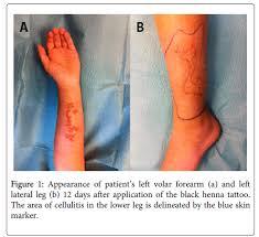 henna tattoo delayed type iv allergic reaction
