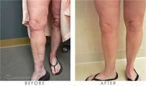 red light therapy cellulite optimum esthetics before after pictures