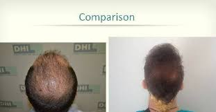 dhi hair transplant reviews dhi hair transplant review images hairsite com