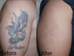11 best tattoo removal images on pinterest locks tattoo removal