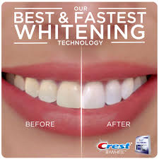 Cost Of Teeth Whitening Crest 3d White Whitestrips With Light 10 Ct Walmart Com