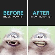 Orthodontist Meme - orthodontist meme 28 images people with braces hot girls