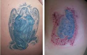 tattoo removal frequently asked questions laser tattoo removal faq san diego laser surgery blog