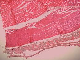 Pgcc Anatomy And Physiology Lab Practical Histology Of Fish 근육 Skeleton Muscle Histology Of Marine