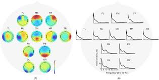 electrophysiological signatures of atypical intrinsic brain