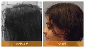 neograft recovery timeline neograft hair transplant for women nashville hair doctor
