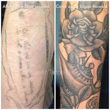 100 cover up after laser tattoo removal laser bodycare