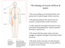 Muscle Spasms Versus Muscle Twitching by Muscle Stiffness And Spasm