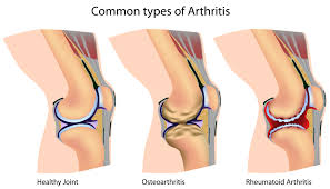 Anatomy Of The Knee Types Of Arthritis That Affects The Knees Kneesafe Com