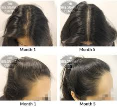 Average Hair Loss Per Day Index Of Wp Content Uploads 2015 01