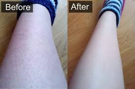 how to remove ingrown hair in thigh how to get rid of ingrown hairs on your legs