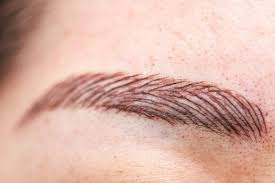 eyebrow tattoo removal