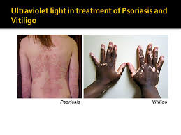 psoriasis and ultraviolet light uses of electromagnetic radiation in medical science ppt video