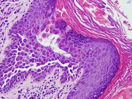pathology outlines pathology outlines
