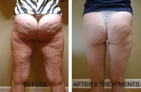 red light therapy cellulite cellulite treatments hove brighton clinic