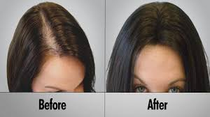 Thin Hair Extensions Before And After by Prevent Hair Loss How To Prevent Hair Loss Naturally Youtube