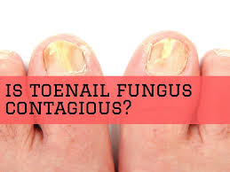 Contagious by Is Toenail Fungus Contagious How Is Toenail Fungus Transmitted