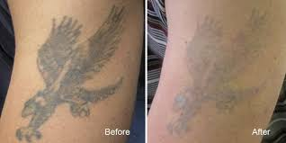 tattoo removal vancouver remove tattoos safely and fast