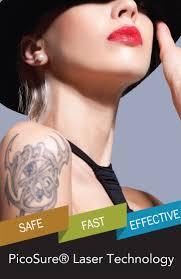 how does laser tattoo removal work l tatfreemd faq u0027s