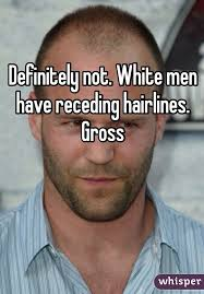 Receding Hairline Meme - not white men have receding hairlines gross